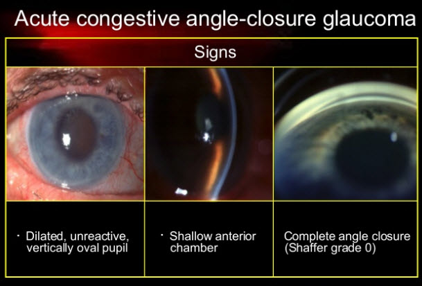 acute angle-closure glaucoma