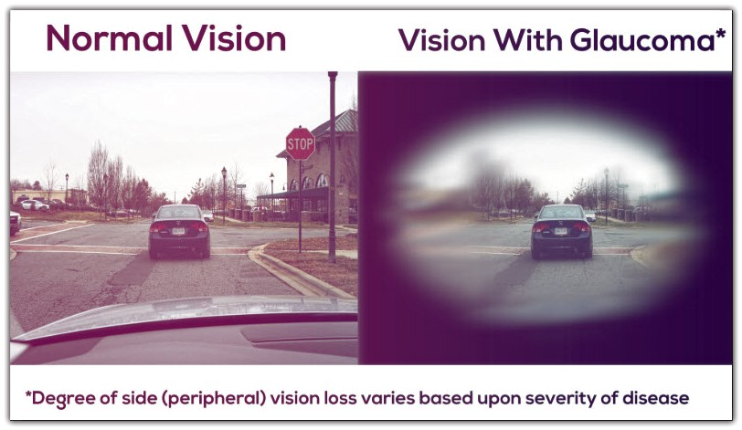 normal vision vs with glaucoma